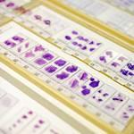 Helsingin Biopankkiin yli miljoonan potilaan kudosnäytteet