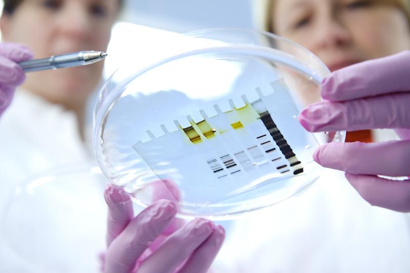 Verenluovuttajat myönteisiä lääketieteellisen tutkimuksen edistämiseen