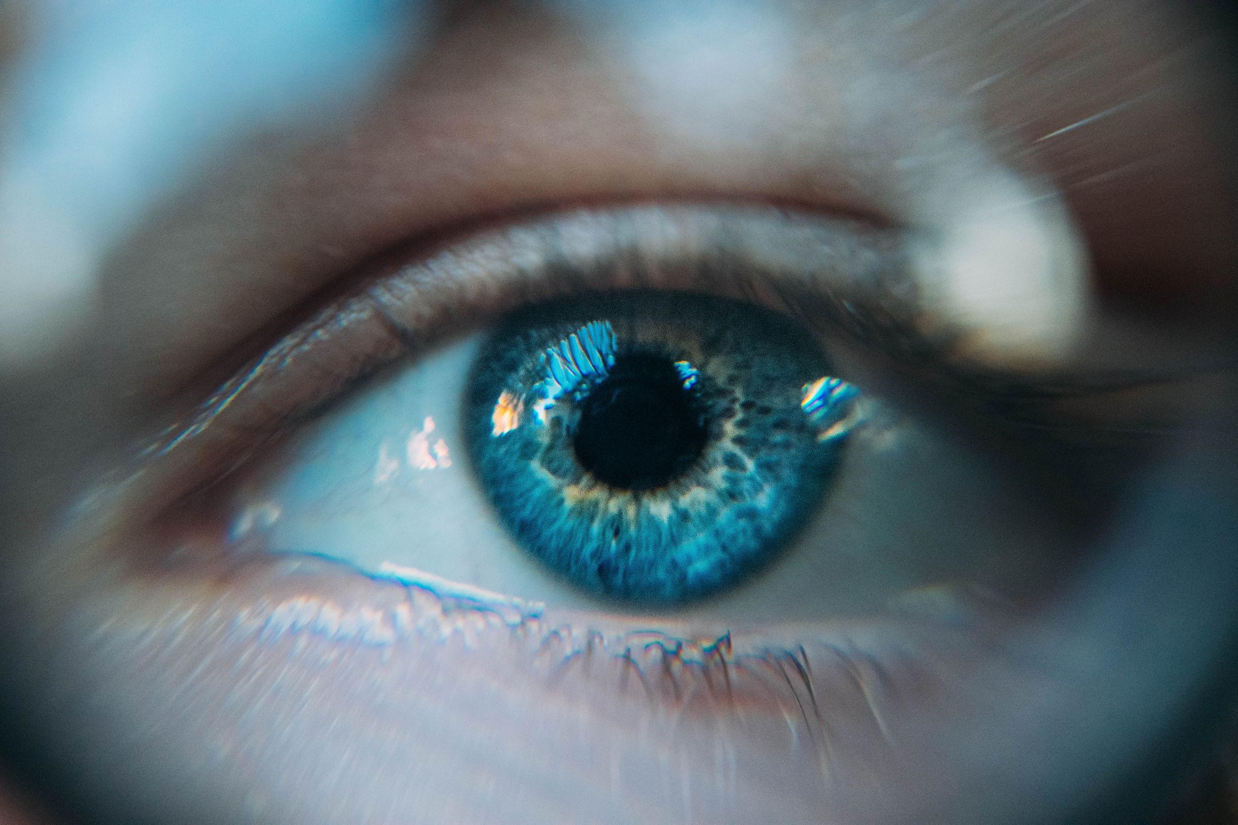 FinnGen-tutkimuksessa löydettiin silmänpainetaudilta suojaava, suomalaisilla yleinen geenimuoto